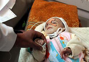 国际英语新闻:UNICEF highlights impact of war on Yemeni children