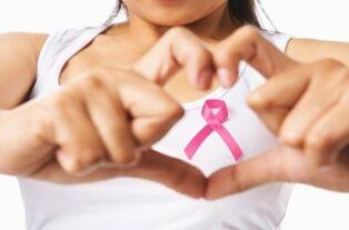 研究发现 基因测试可以让许多乳腺癌患者避免化疗