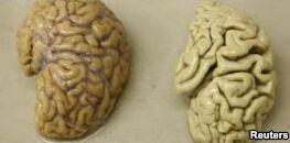 VOA慢速英语:研究人员称病毒有助于治疗阿尔茨海默病