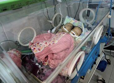 国际英语新闻:Yemeni conjoined twins die awaiting transfer abroad for lifesaving surgery