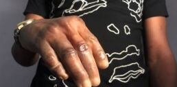 VOA慢速英语:尼日利亚艺术家制作深色皮肤假肢