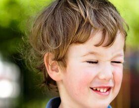 孩子经常眨眼也可能是病