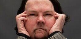 罕见双重移植手术:美国一男子得到新的脸和双手